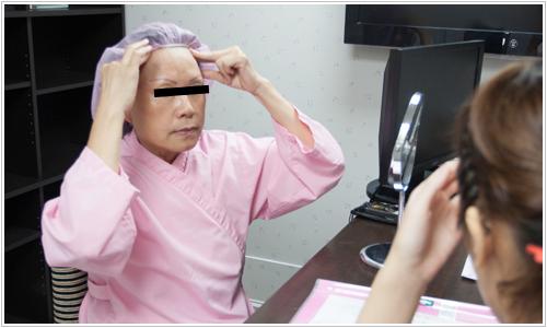 台北中壢桃園醫美聖宜診所內視鏡五爪羽毛線拉皮