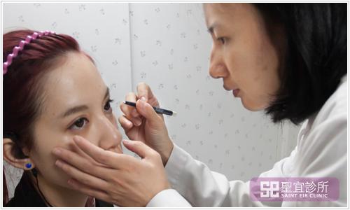 台北桃園中壢聖宜診所微整形醫美玻尿酸蘋果肌