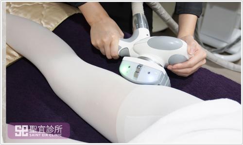 台北東區中壢醫美聖宜診所LPG纖體體雕