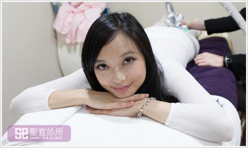台北中壢醫美聖宜診所LPG體雕