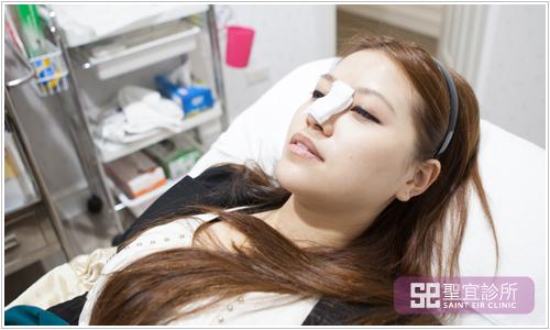 台北桃園中壢聖宜診所醫美整形晶亮瓷微晶瓷
