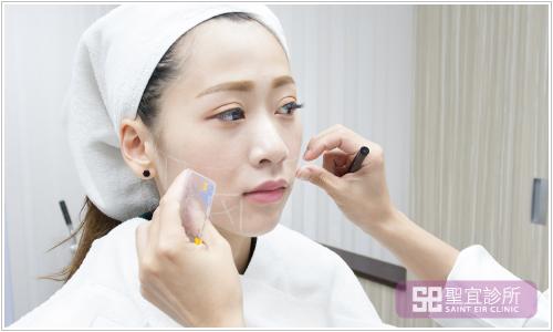 台北桃園中壢醫美聖宜診所ultherapy極線音波拉皮