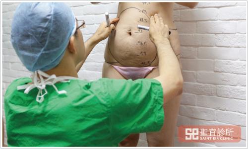 台北中壢醫美聖宜診所抽脂