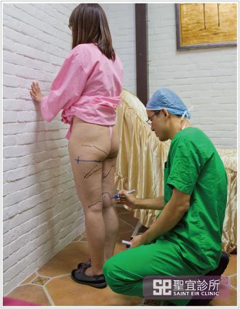 減脂雕塑桃園台北中壢醫美整形聖宜診所抽脂