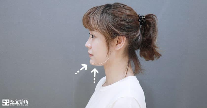 輪廓下顎線