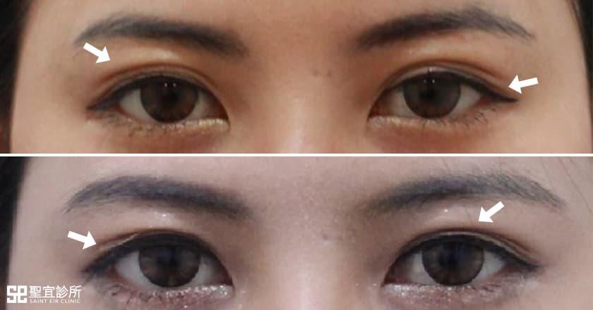 雙眼皮手術.Ruby