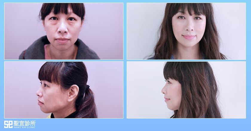 50+媽媽告別衰老視覺降齡/眼袋手術