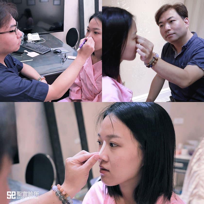 倪宗聖,韓式隆鼻,聖宜,聖宜隆鼻,Goretex,隆鼻,三段式隆鼻,縮鼻翼