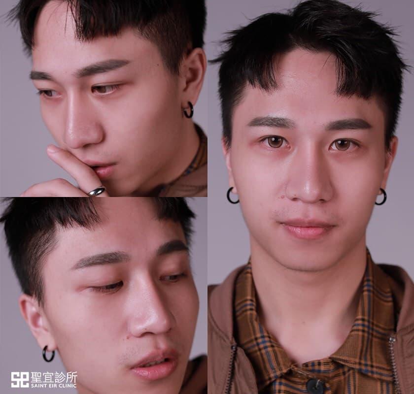 韓式隆鼻,三段式隆鼻,隆鼻,男生隆鼻,男生整形,潮男,挺鼻,鼻樑,