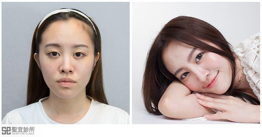 晶亮瓷,卡麥拉,gotox,隆鼻,隆鼻手術心得,隆鼻手術推薦,隆鼻手術