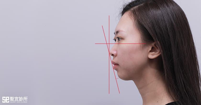 隆鼻手術,墊下巴手術