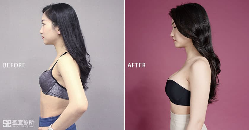魔滴隆乳術前術後比較