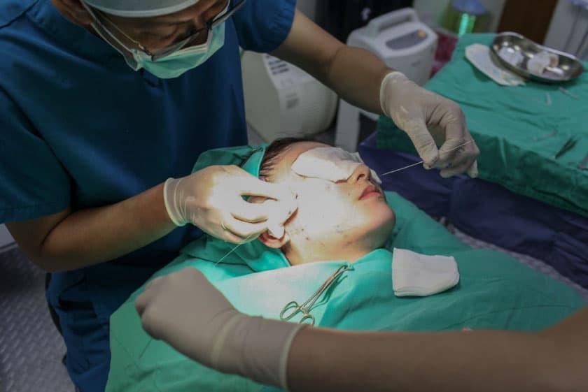 複合式拉提手術中