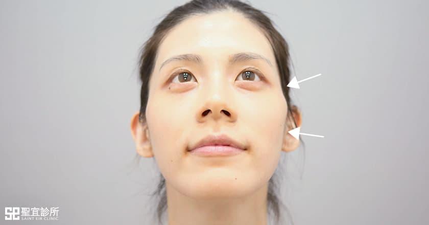 晶亮瓷/微晶瓷填補法令紋蘋果肌