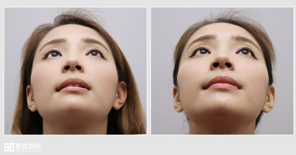 V臉有感 時尚輪廓 打造歐美骨感下巴.晶亮瓷/微晶瓷