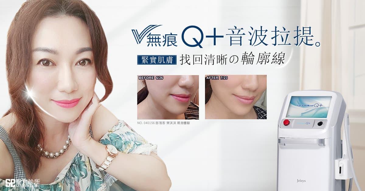 V無痕Q+,音波拉提,韓國音波,美國音波,拉皮,V臉