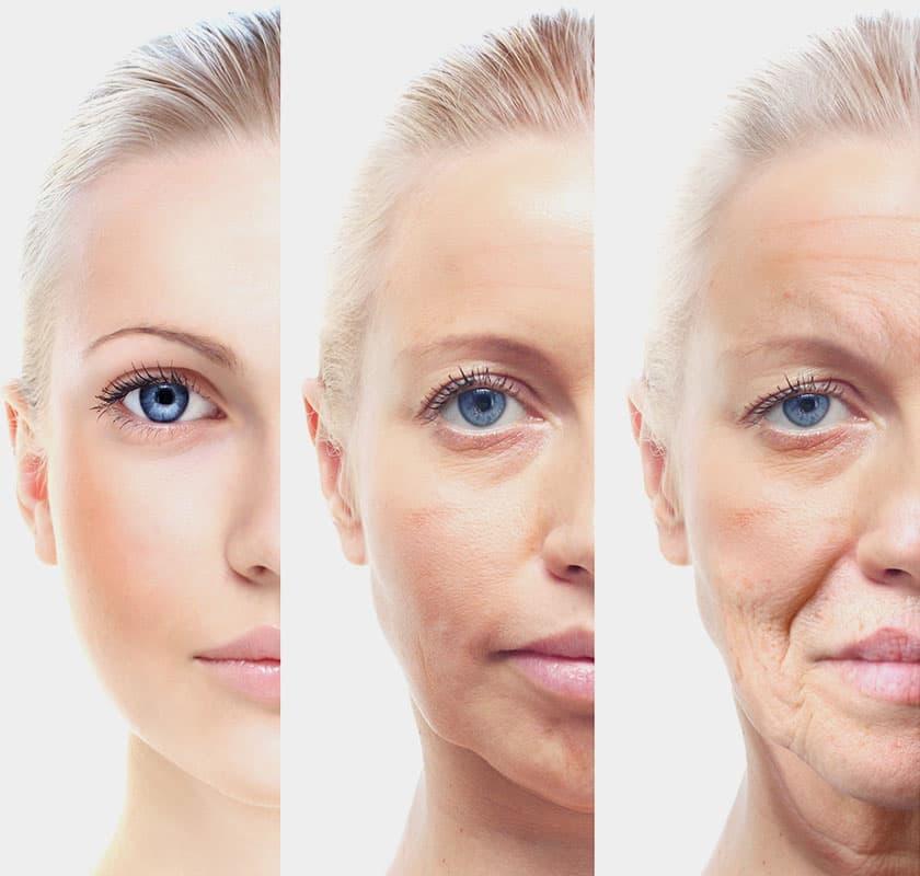 肌膚老化鬆弛示意圖