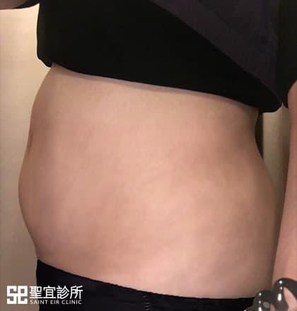 產後瘦身,瘦肚子,瘦小腹,立倍塑效果,非侵入式減脂,Lipocel,立倍塑,醫美