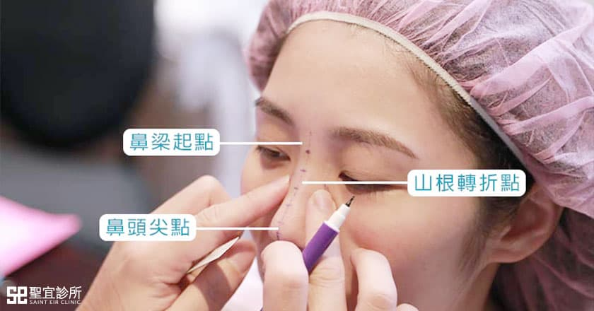 高詢問自然鼻型.倪宗聖醫師:手術方式與材質都是關鍵!