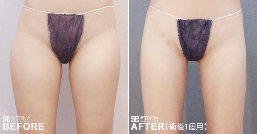 步步術前術後案例照片-抽脂