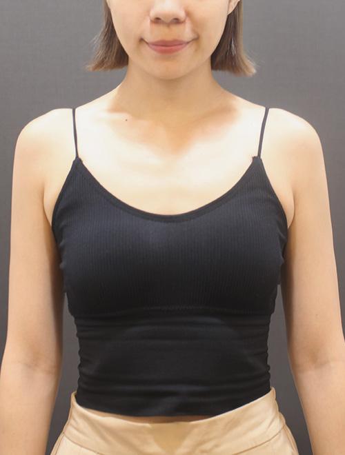 裴薇術前胸型扁平