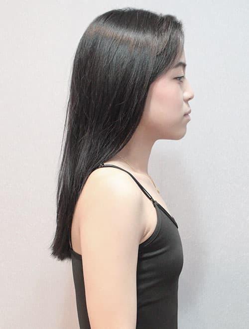 詹容術前胸型扁平,比較胸肌的感覺