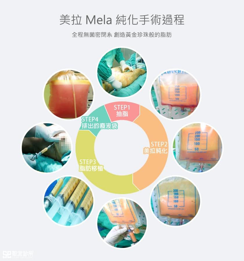 美拉純化手術過程