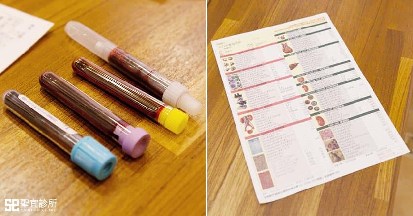術前檢驗/抽血