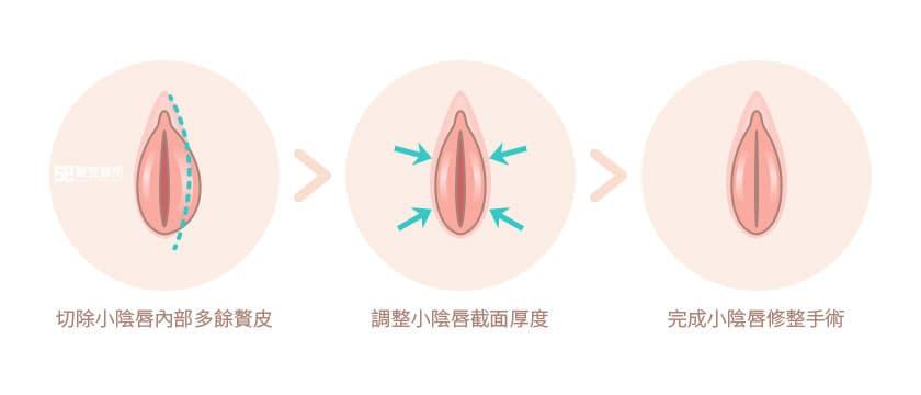 小陰唇修整手術過程