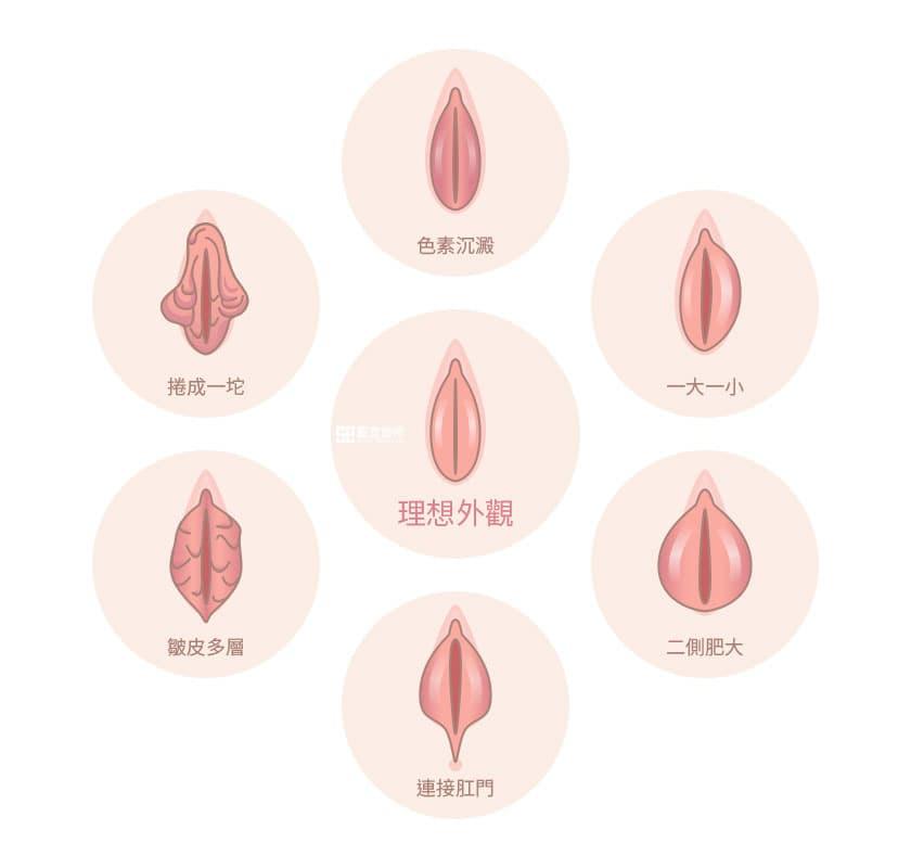需要小陰唇手術的情況