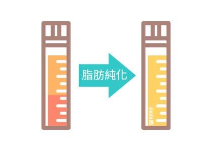 大陰唇填補流程:透過專業離心機將自體脂肪純化。