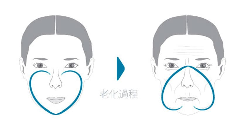 臉部老化過程示意圖