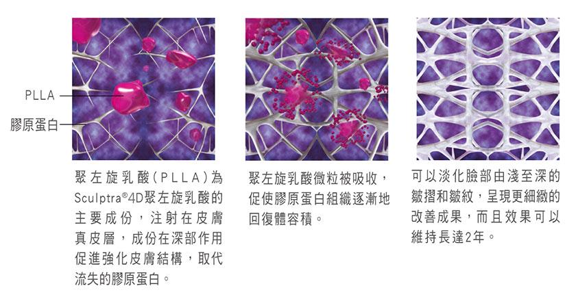 Sculptra舒顏萃/3D聚左旋乳酸-治療原理