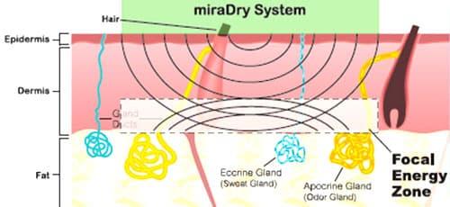 miraDry清新微波熱能止汗術-作用原理示意圖