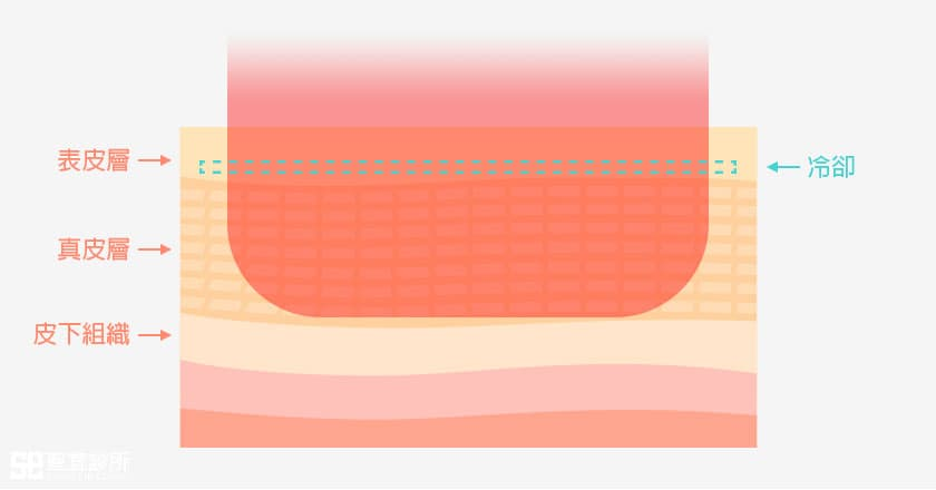 CPT電波拉皮-探頭熱傳導方式