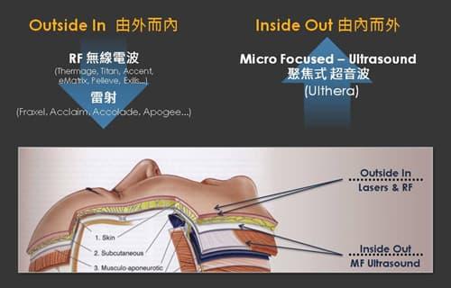 Ulthera極線音波拉提-聚焦式超音波、RF無線電波、雷射治療示意圖