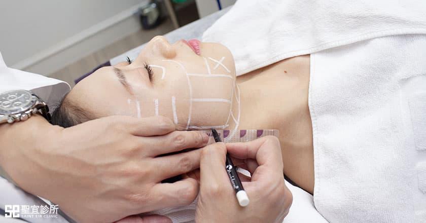 Q+音波拉提-治療過程