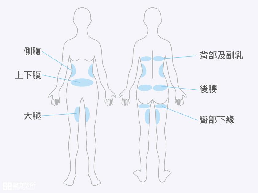 MICOOL-S 酷S冷凍減脂-適用部位