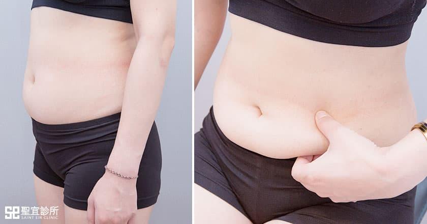 術前進行評估治療部位是否有適當厚度的脂肪組織