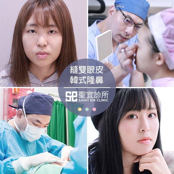 縫雙眼皮+韓式隆鼻手術