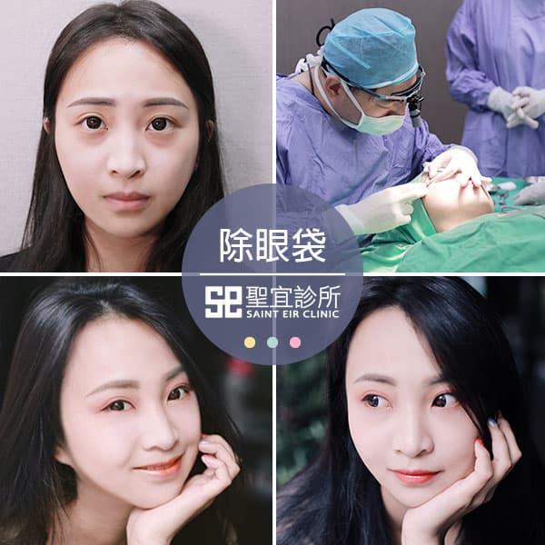 除眼袋手術